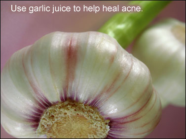 Use garlic juice to help heal acne