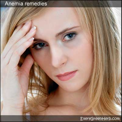 Woman with pale skin - anemia can be treated with herbal medicine.
