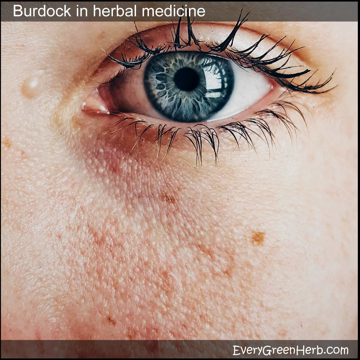 Tips For Using Burdock In Herbal Medicine And Home Remedies