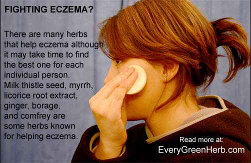 Treating eczema with herbal remedies