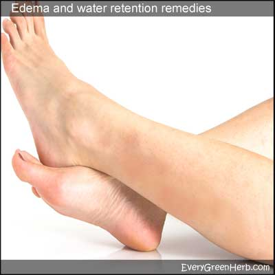 Swelling and water retention can be treated with herbal medicine.