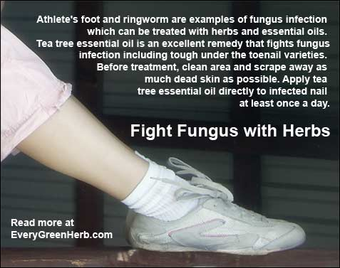 Using herbs to treat fungus infections
