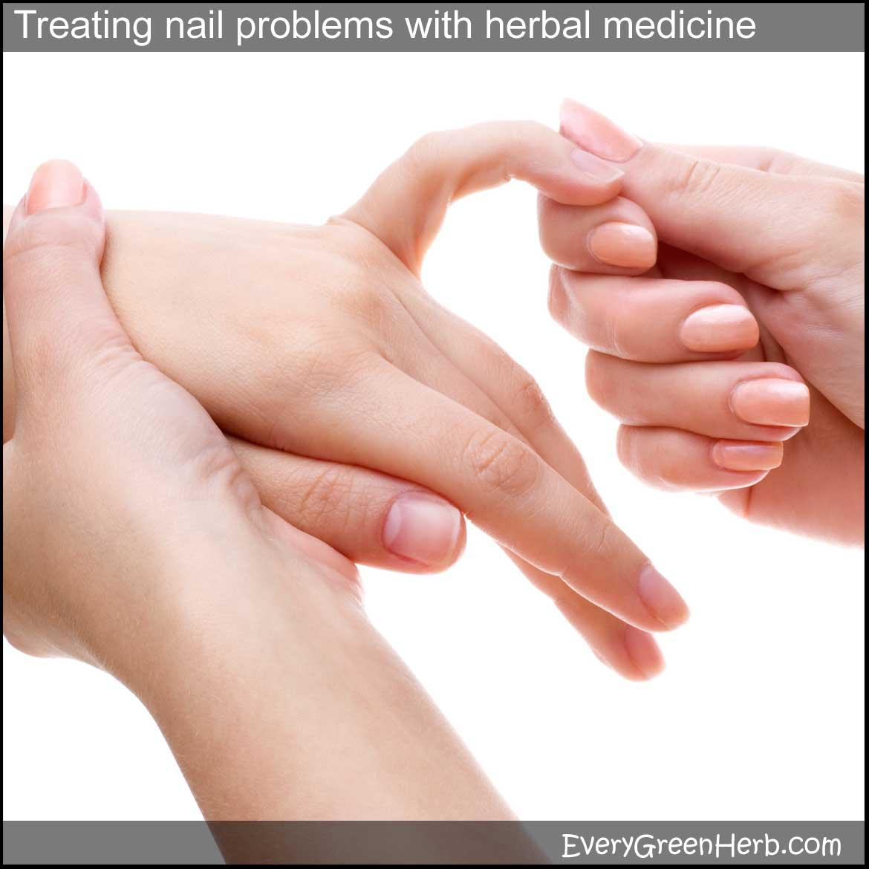 Fingernail and toenail treatments using medicinal herbs, essential ...